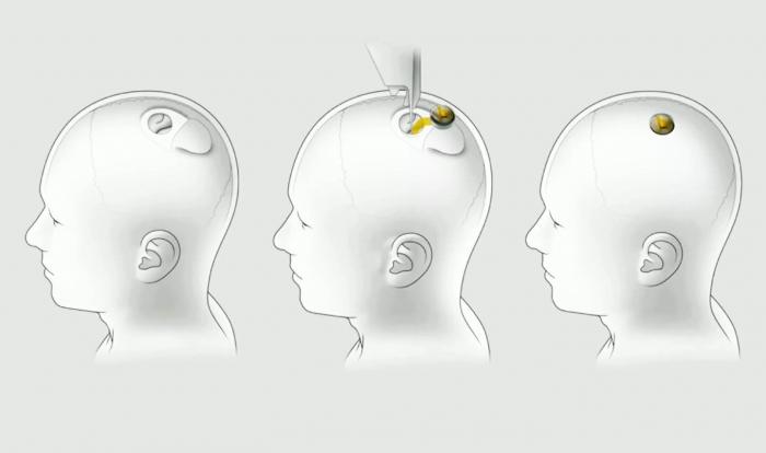 H NEURALINK ΤΟΠΟΘΕΤΕΙ ΕΜΦΥΤΕΥΜΑΤΑ ΣΕ ΕΓΚΕΦΑΛΟΥΣ ΖΩΩΝ