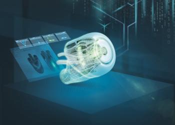 Siemens: συνδέει τους παρόχους υγειονομικής περίθαλψης και τους σχεδιαστές ιατρικών μηχανημάτων